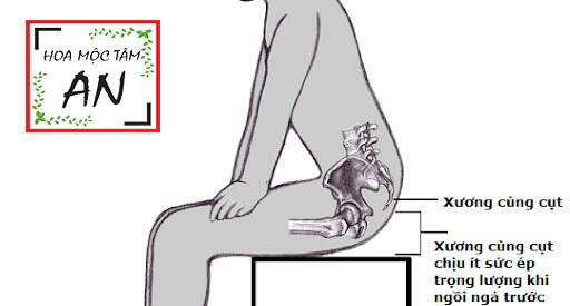 Đau vùng mông gần xương cụt