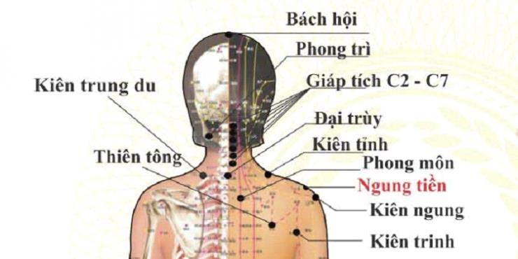 bấm huyệt chữa đau vai gáy